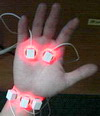 LASER HAND